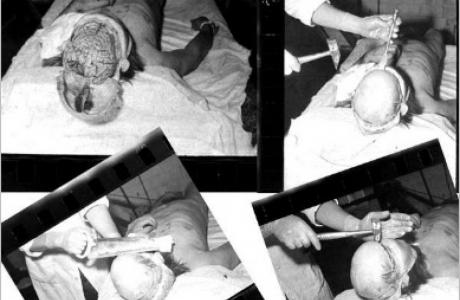 Бутугычаг лагері. Тұтқынның миын ашып, медициналық сынақ жасап жатыр. Сурет НКВД мұрағатынан алынған.